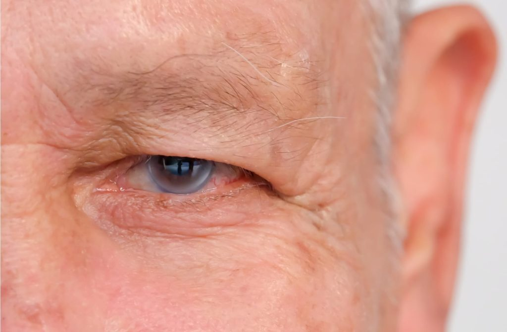 A close up of an elderly man's left eye with glaucoma